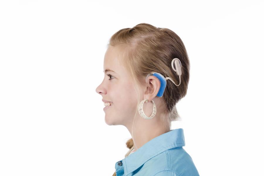 BAHA Hörverstärker © elsahoffmann, stock.adobe.com