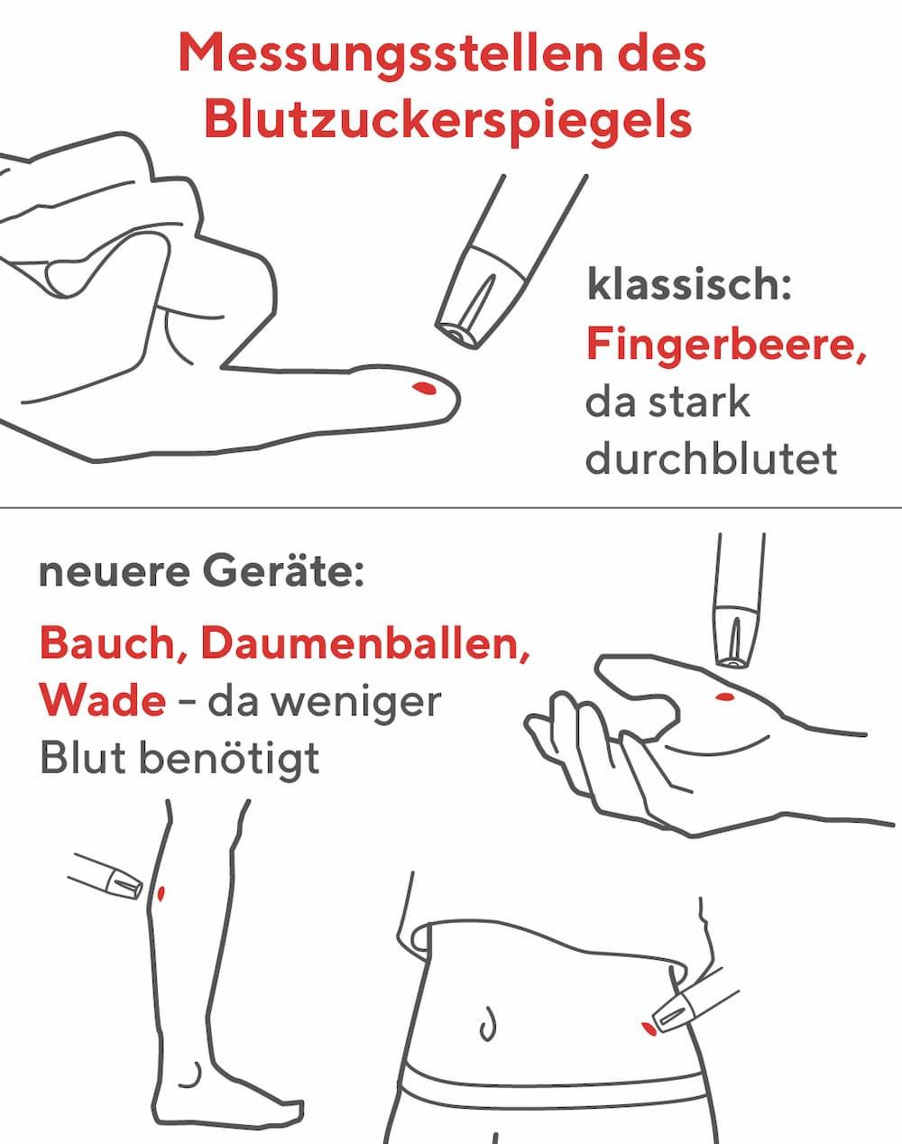 Blutzuckermessgeräte: Messstellen am Körper