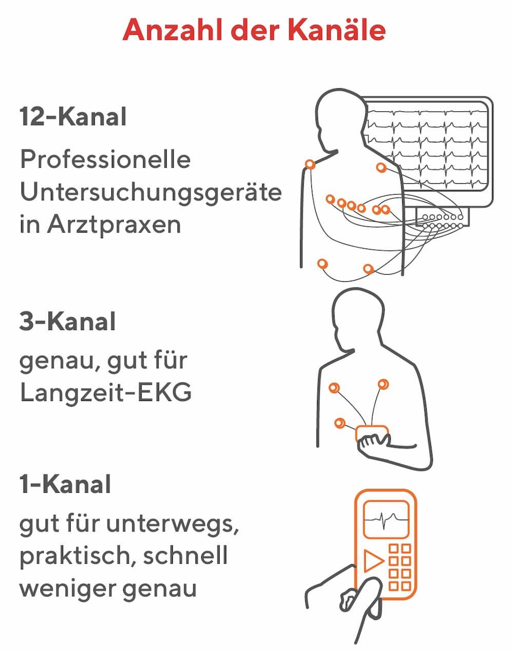 EKGs: Anzahl der Kanäle