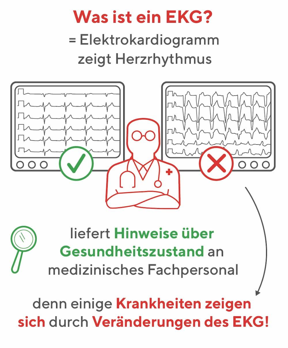 Was ist ein EKG?